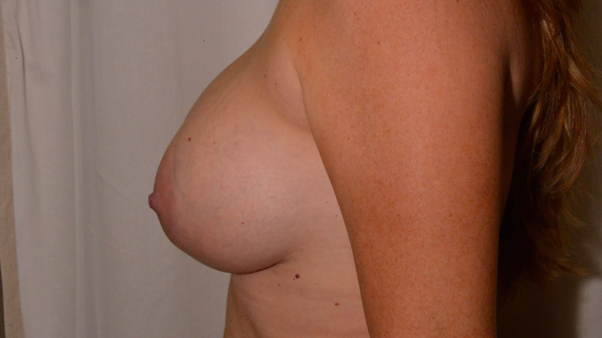 After: BREAST AUGMENTATION – CASE #35658
