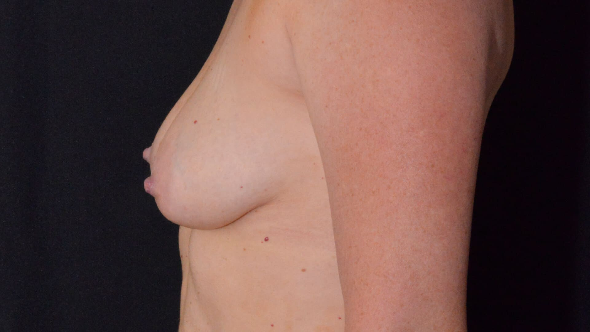 Before: BREAST AUGMENTATION – CASE #35658