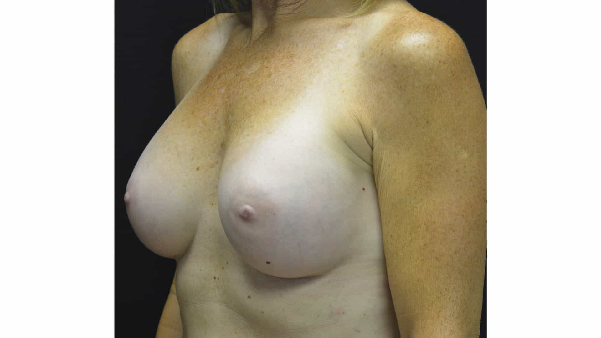 Before: BREAST AUGMENTATION – CASE #35675