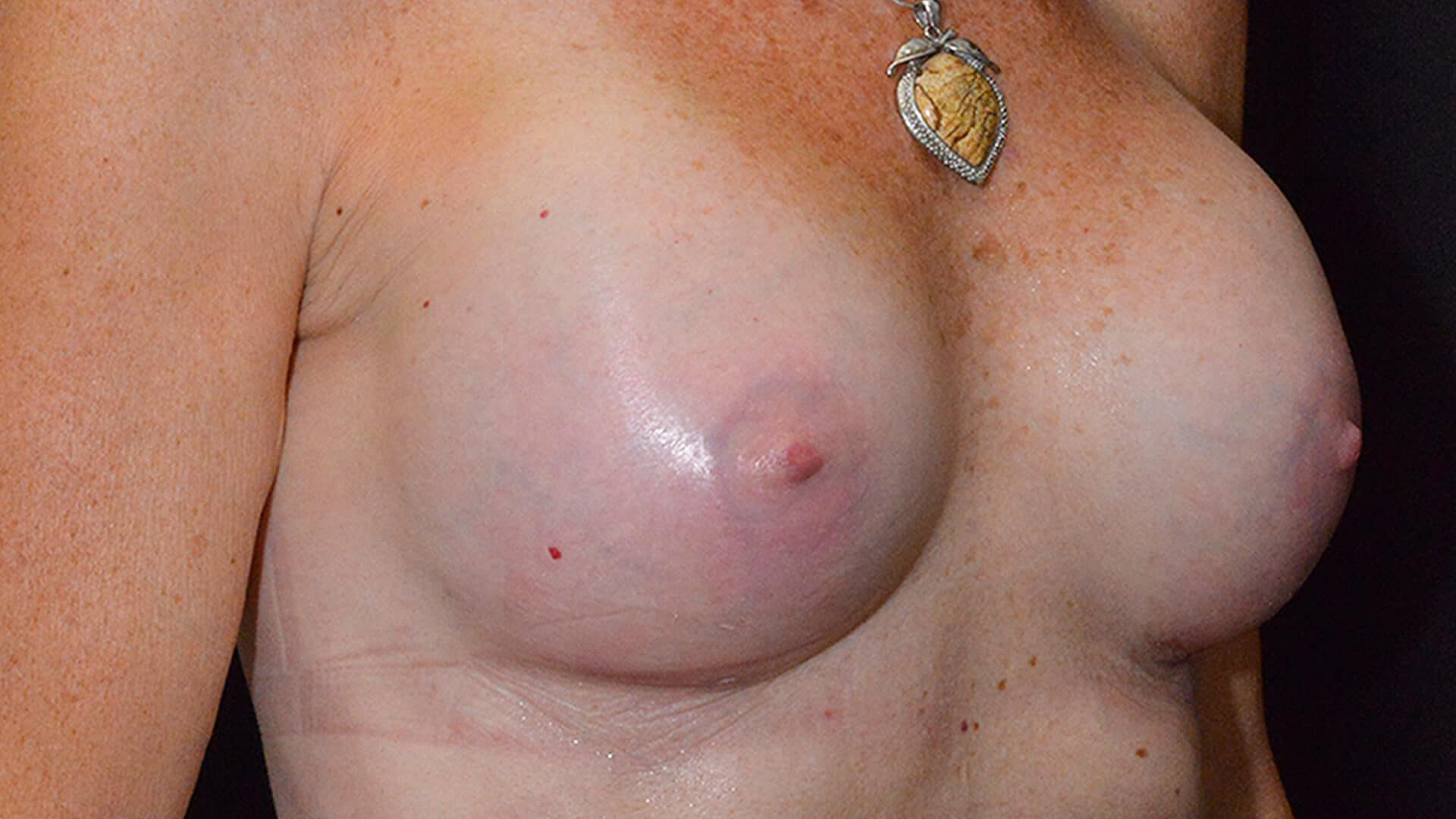 After: BREAST AUGMENTATION – CASE #35675