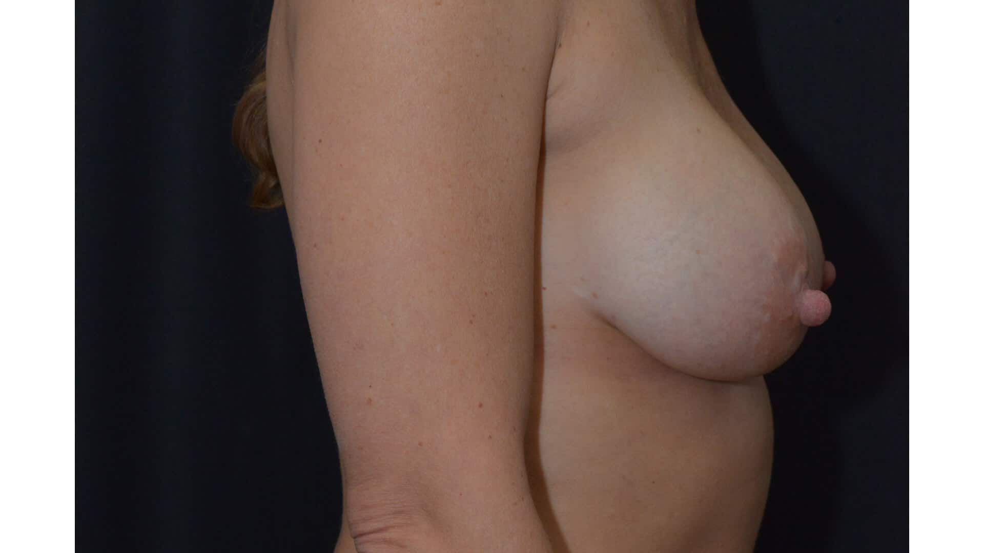 After: BREAST AUGMENTATION – CASE #35682