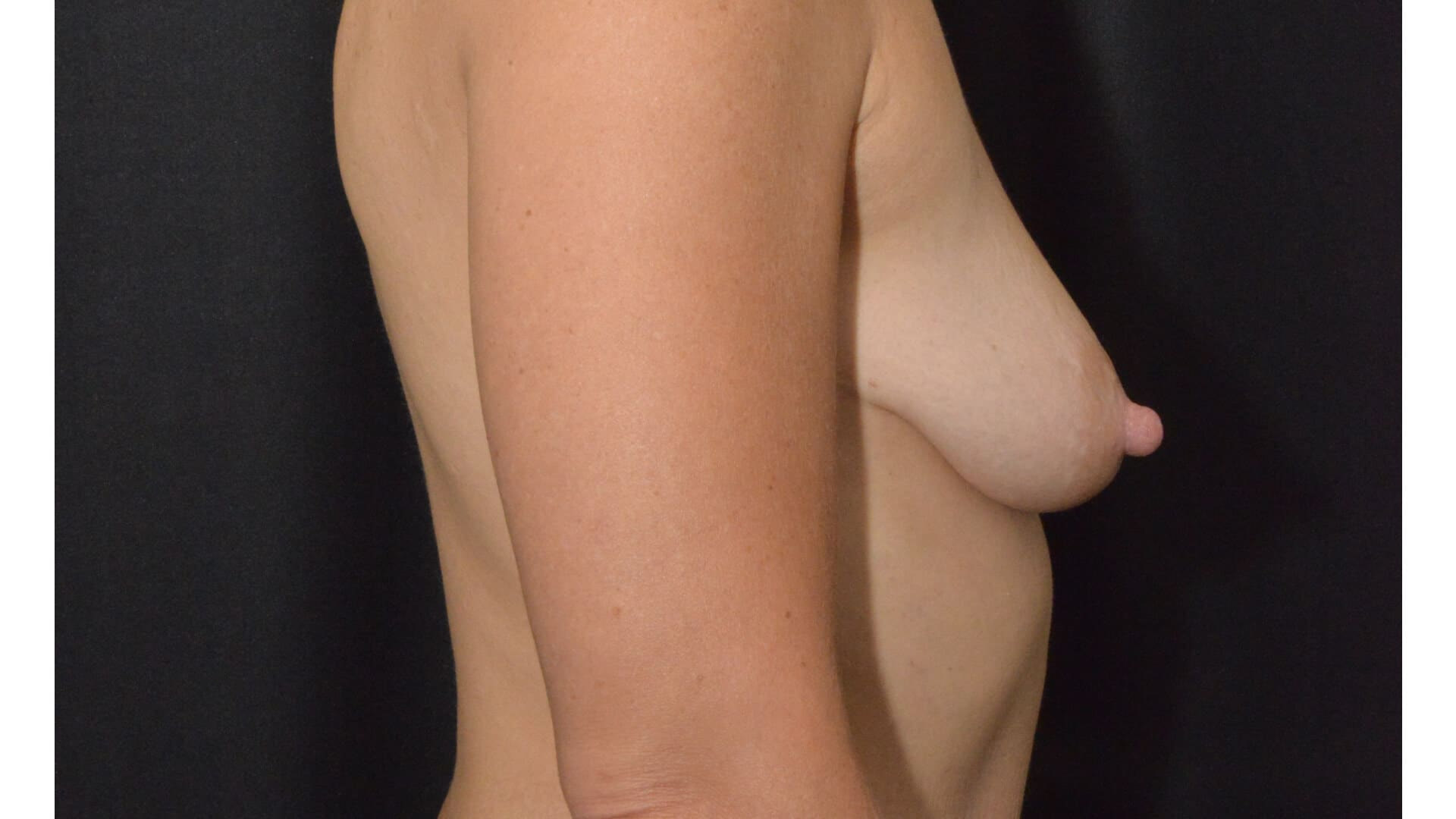 Before: BREAST AUGMENTATION – CASE #35682