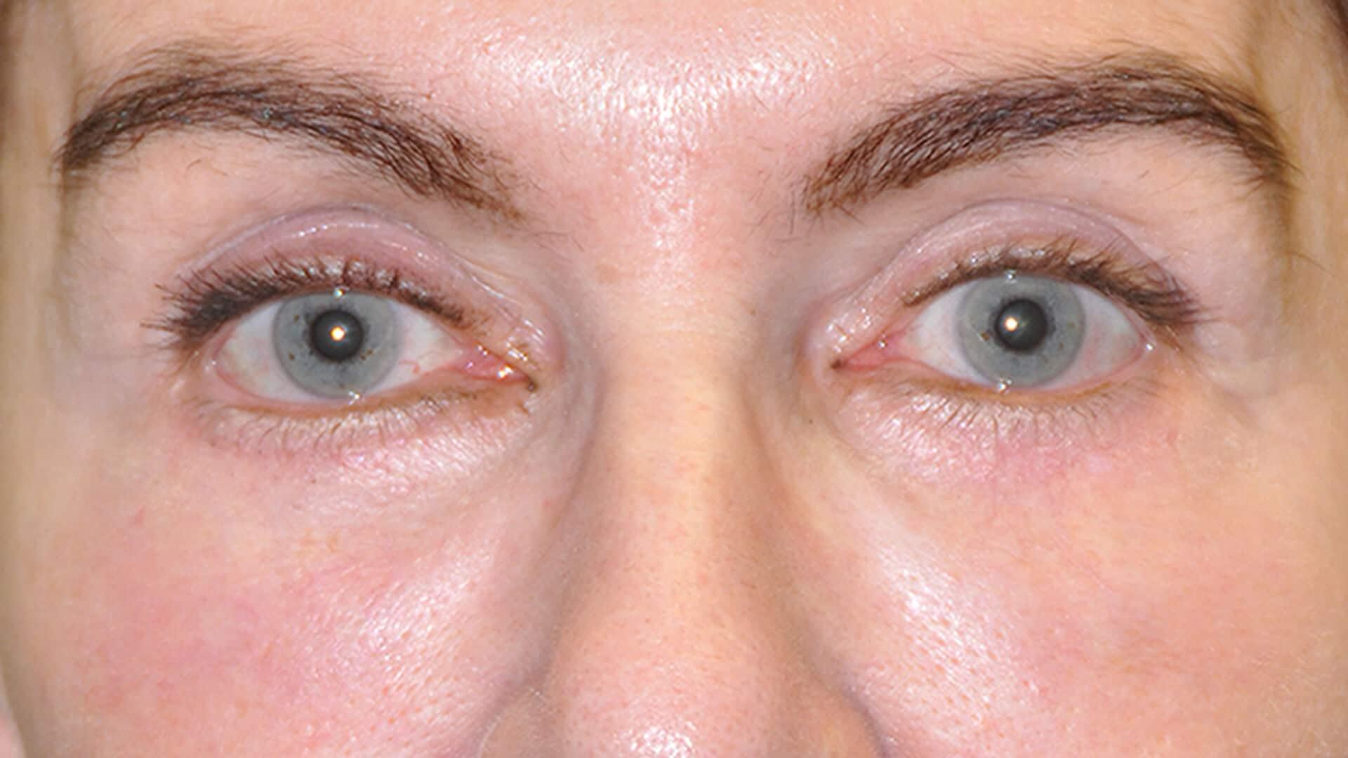 Case 35695 LowLid Blepharoplasty After