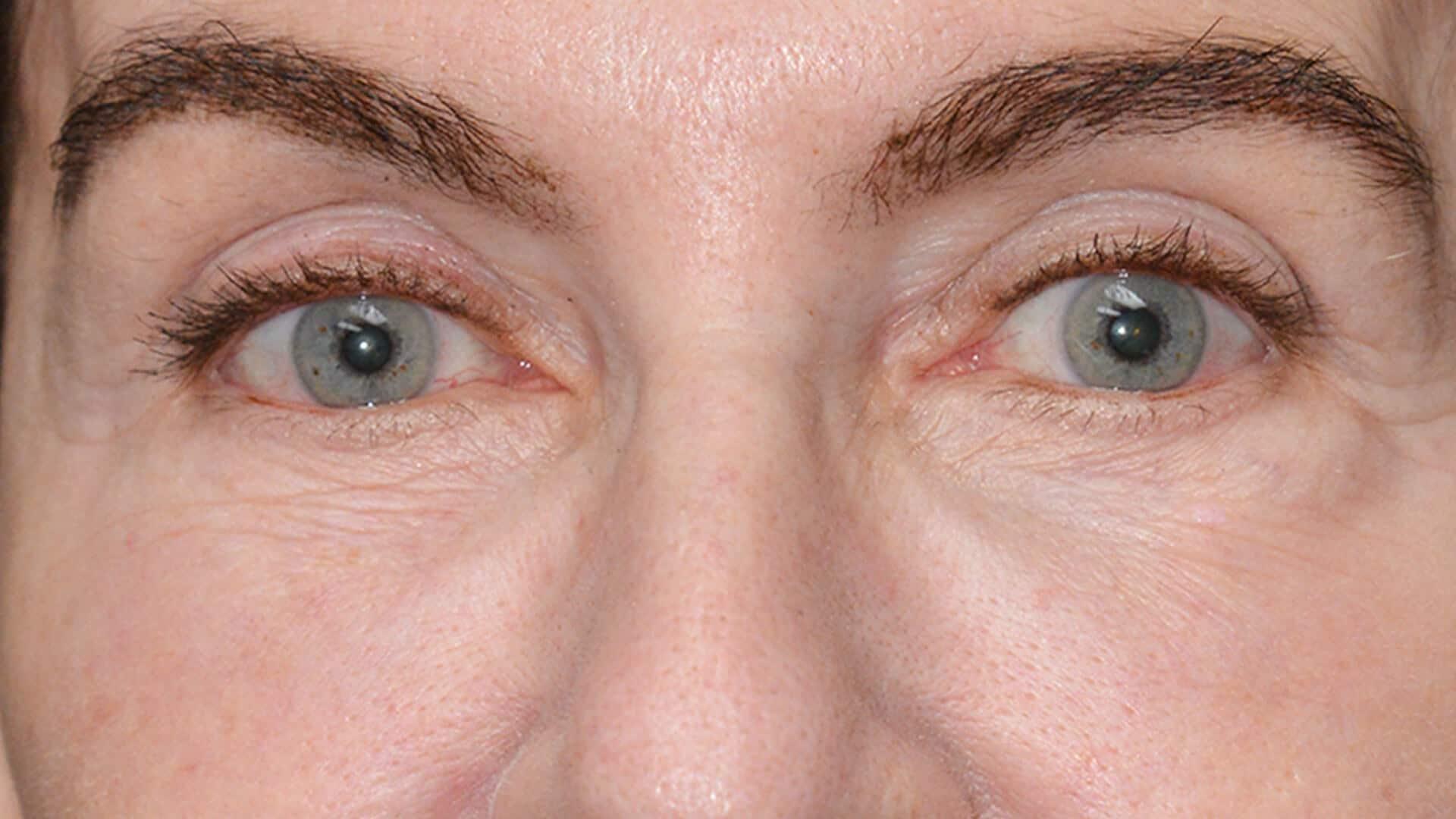 Case 35695 LowLid Blepharoplasty Before