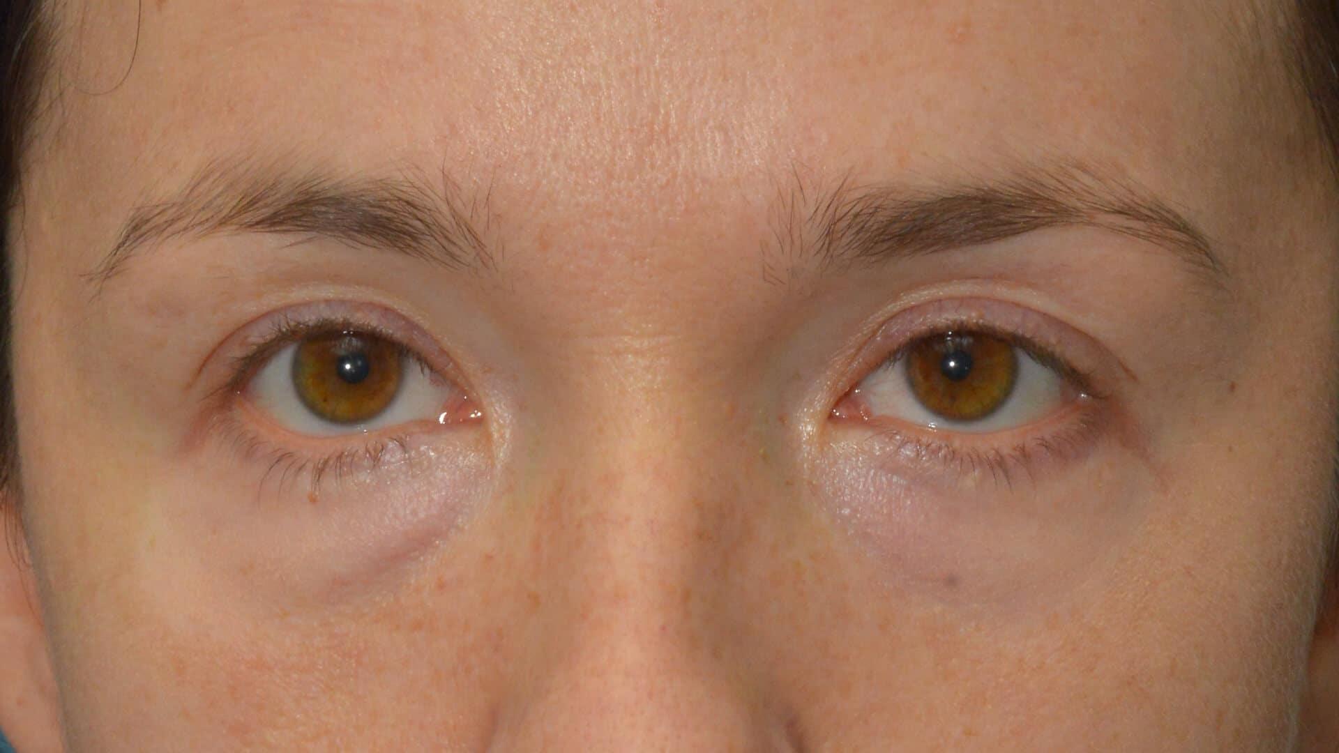 Case 35703 Lower Pinch Blepharoplasty after