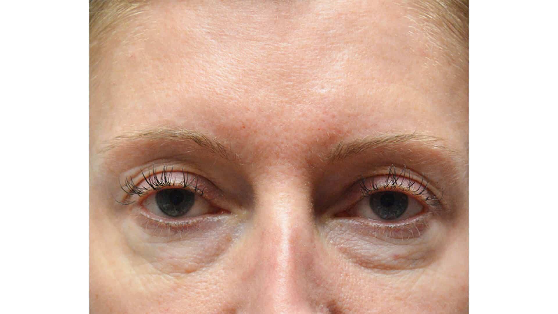 Before: Blepharoplasty – CASE #35737