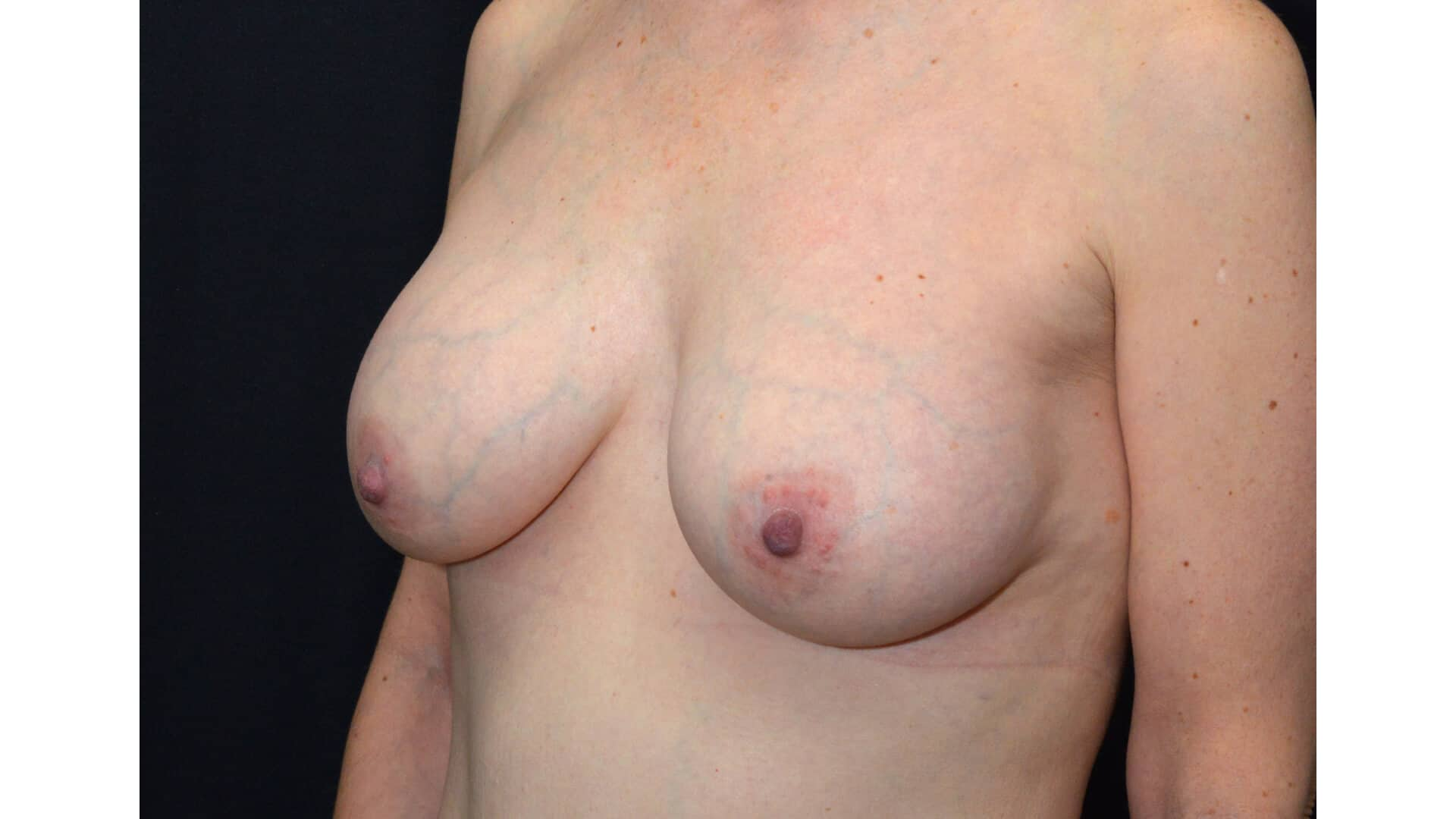 After: BREAST AUGMENTATION – CASE #35826