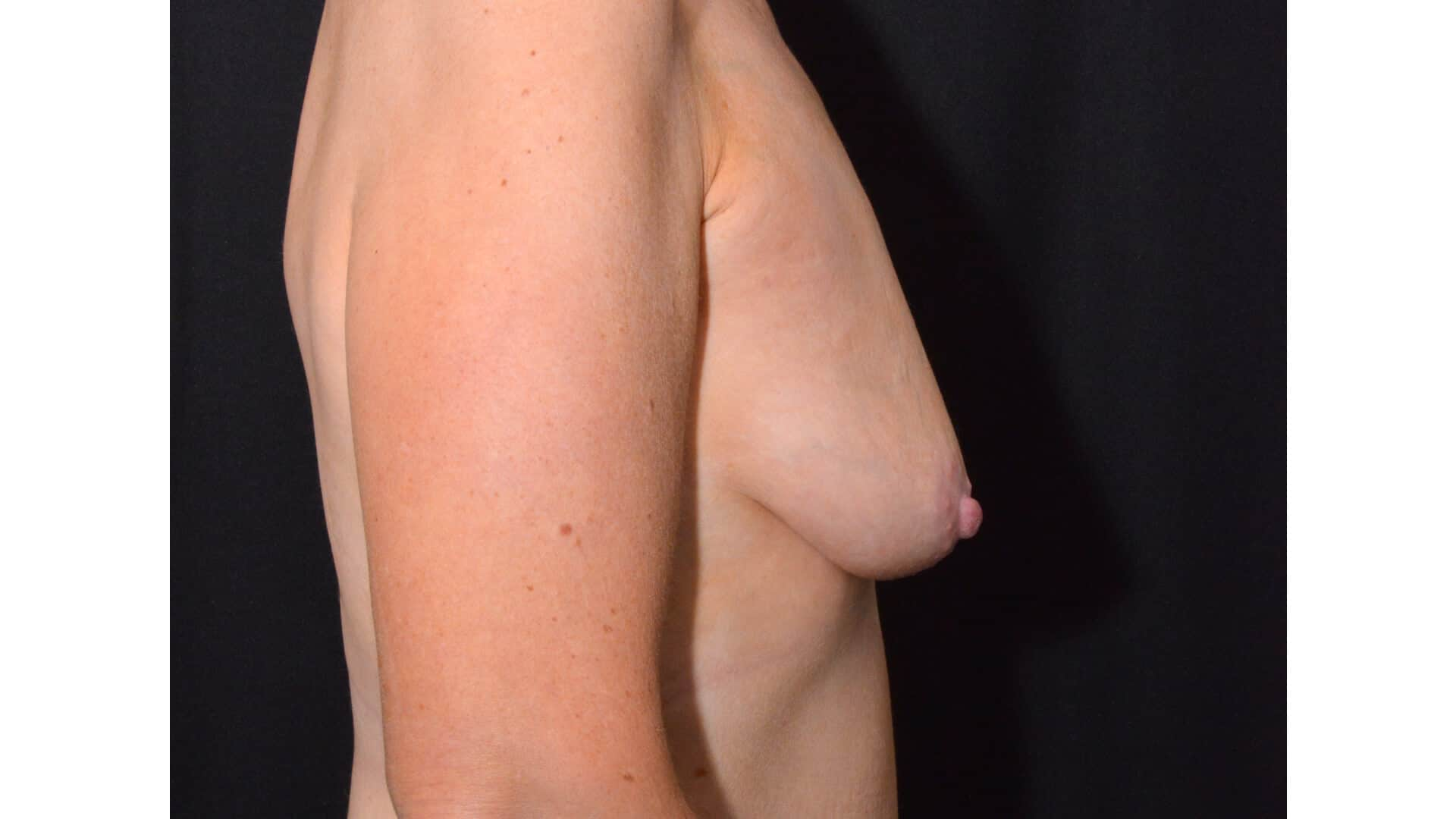 Before: BREAST AUGMENTATION – CASE #35826
