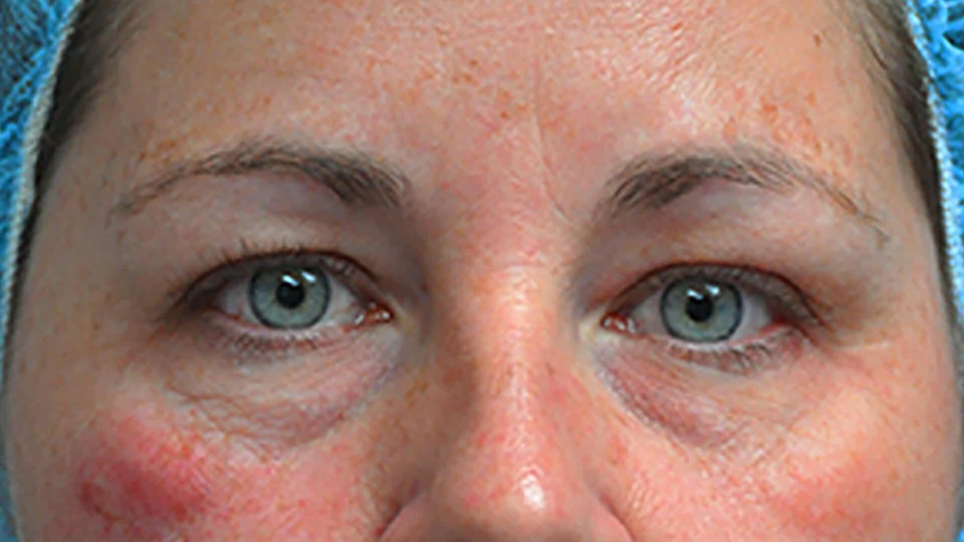 Before: Blepharoplasty – CASE #62517