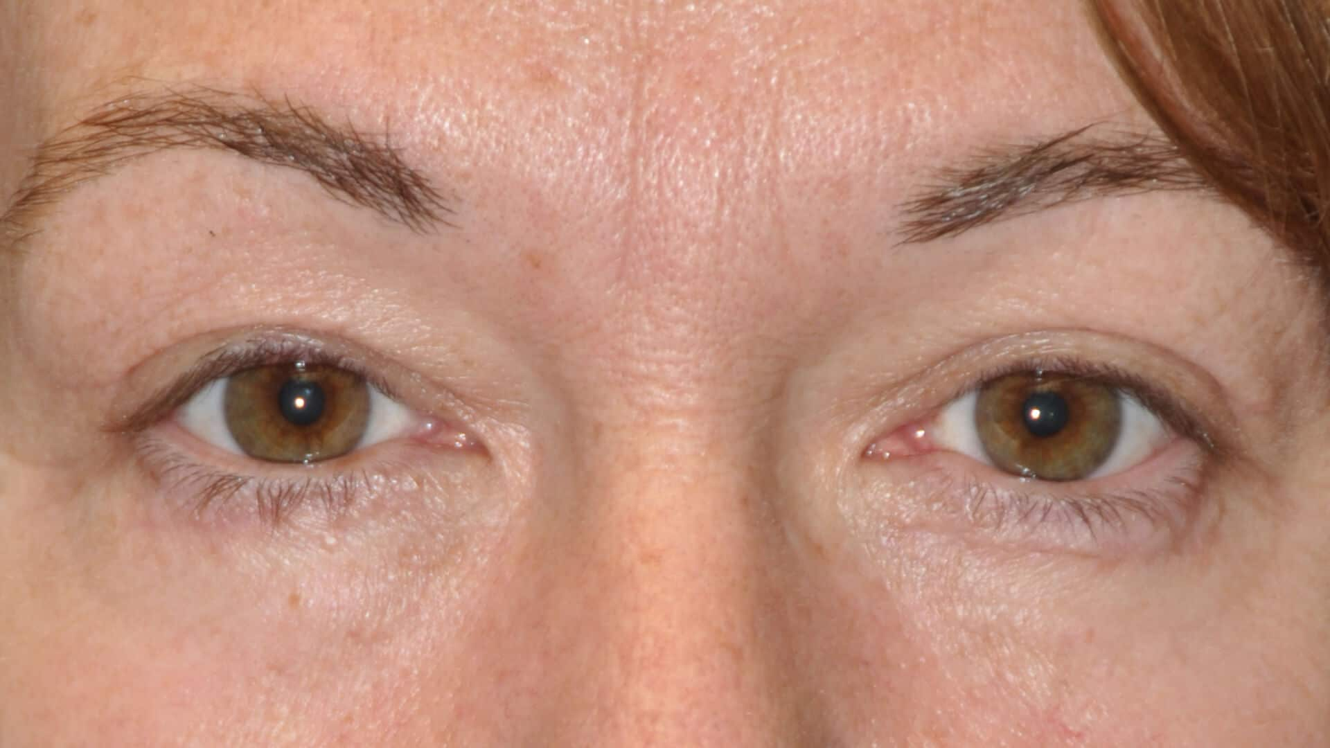 , Blepharoplasty (Eyelid Lift) – Upper