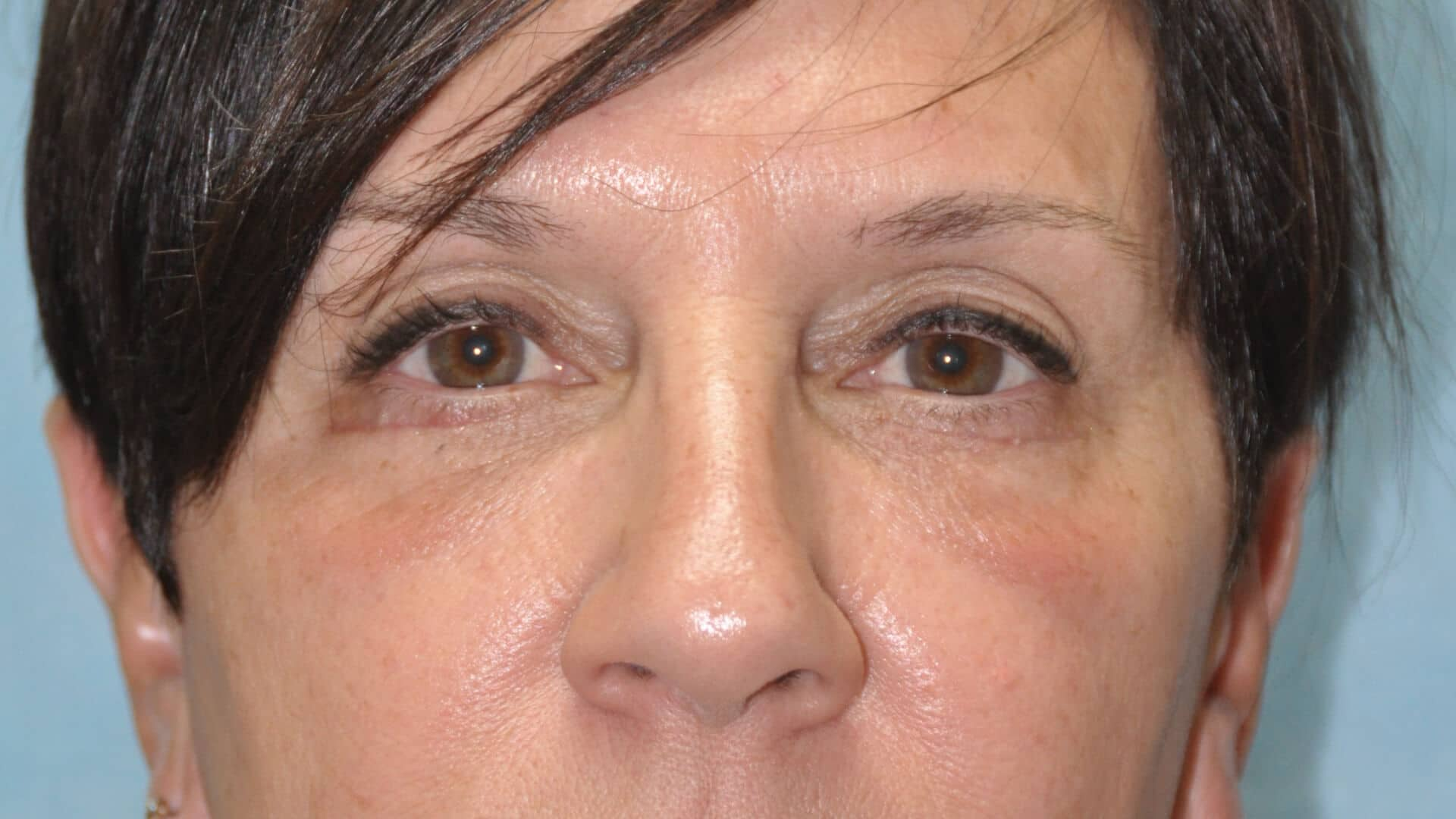 Case 35664 lower pinch blepharoplasty after