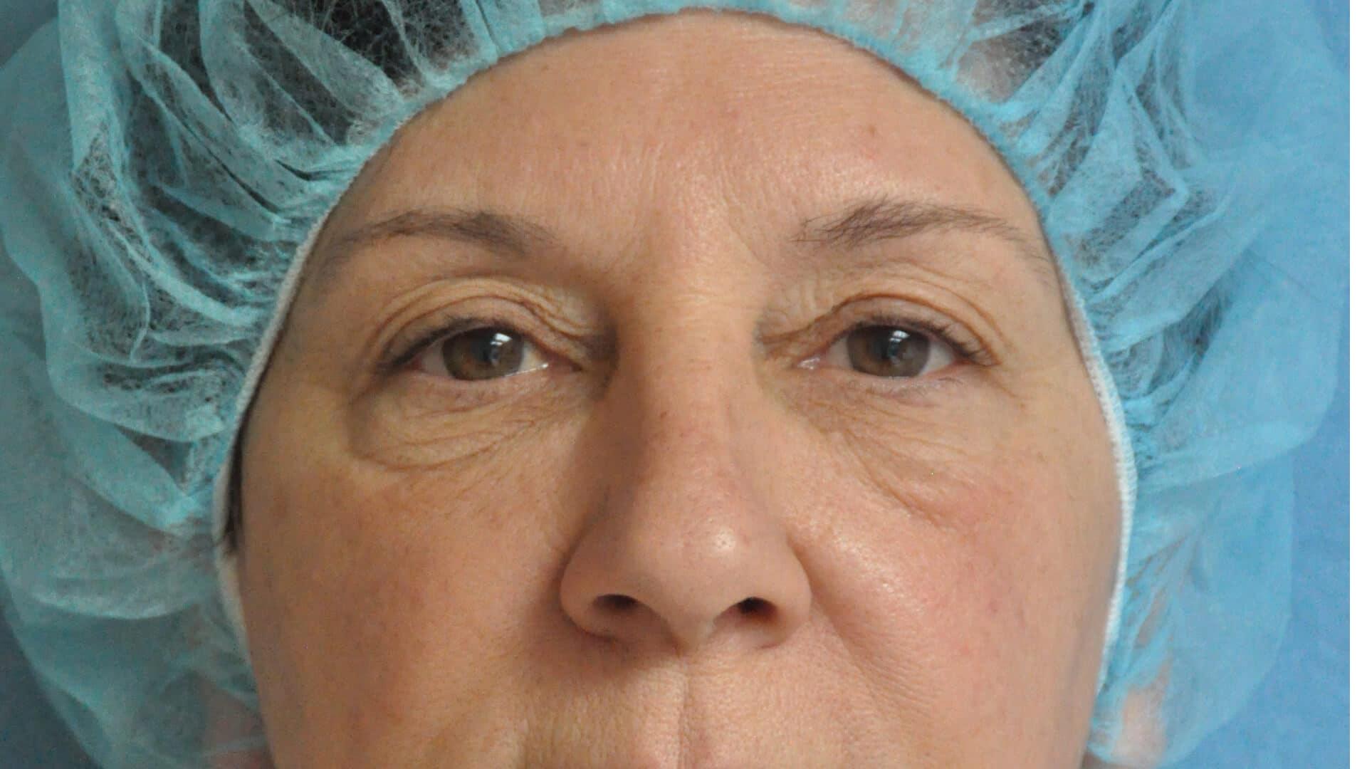 Case 35664 lower pinch blepharoplasty before